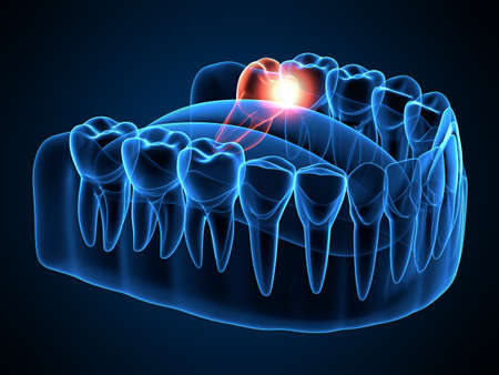 3d render of jaw x-ray with wisdom mesial impaction. Concept of different types of wisdom teeth problems.
