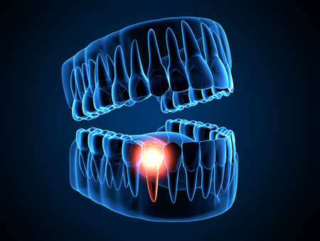 3d render of jaw x-ray with aching premolar tooth. Toothache concept. Zdjęcie Seryjne