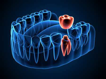 3d render of jaw x-ray with dental crown embed on reshaped tooth