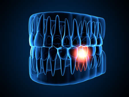 3d render of jaw x-ray with aching molar tooth. Toothache concept.