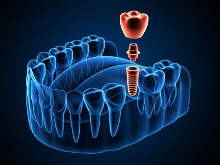 3d render of jaw x-ray with dental implant placement Foto de archivo