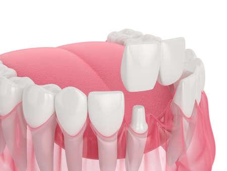 3d render of jaw with dental cantilever bridge over white background Reklamní fotografie - 152533204
