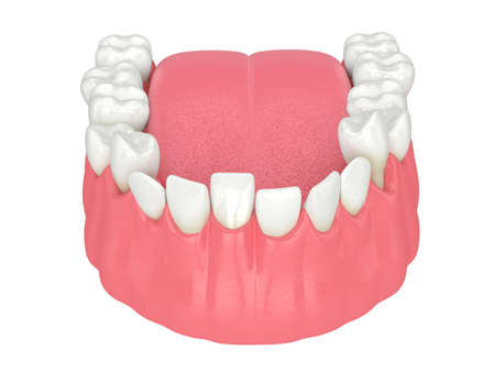 3d render of jaw with abnormal teeth position. Orthodontic treatment concept. Reklamní fotografie - 156811820