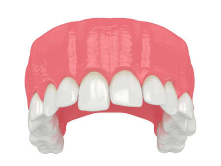 3d render of upper jaw with abnormal teeth position. Orthodontic treatment concept.