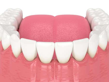 3d render of human lower jaw with black triangles between teeth Reklamní fotografie - 156628884