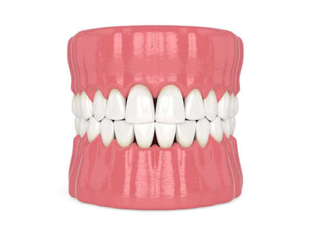 3d render of human jaw with black triangles between teeth isolated over white background Zdjęcie Seryjne