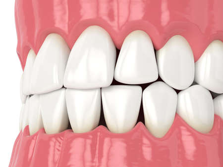 3d render of human jaw with black triangles between teeth Reklamní fotografie - 156629255
