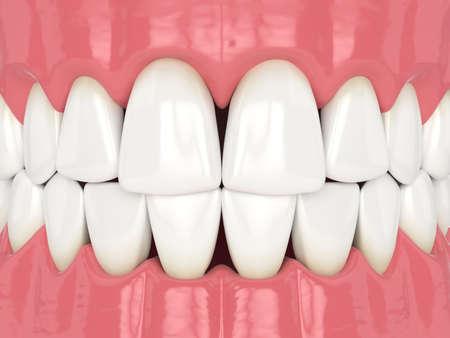 3d render of human jaw with black triangles between teeth Reklamní fotografie - 156629019