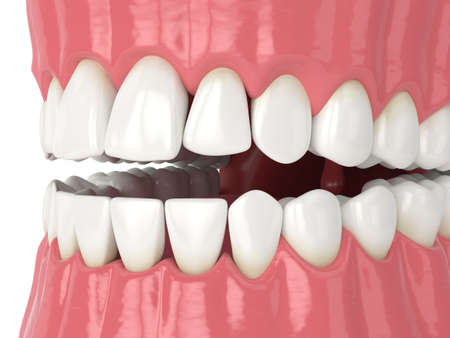 3d render of human jaw with black triangles between teeth isolated over white background Reklamní fotografie