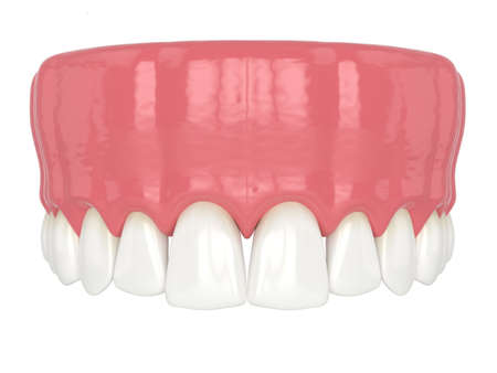 3d render of human upper jaw with black triangles between teeth