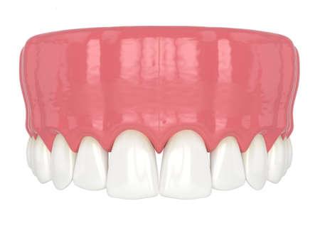 3d render of human upper jaw with black triangles between teeth Reklamní fotografie - 156628582