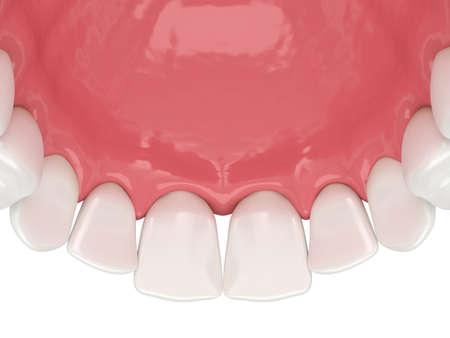 3d render of human upper jaw with black triangles between teeth Reklamní fotografie - 156628796