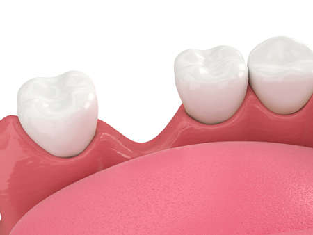 3d render of jaw bone recession after loosing tooth over white Reklamní fotografie - 157092277