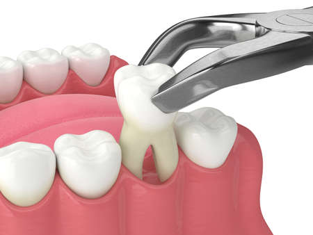 3d render of lower jaw with tooth extracted by dental forceps