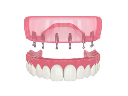 3d render of removable snap-on full implant denture installation over white background