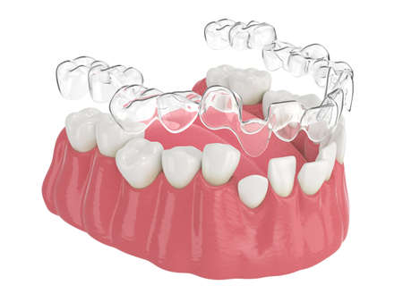 3d render of jaw with clear aligner splint over white background