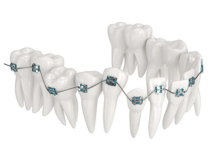 3d render of teeth alignment by orthodontic braces over white background