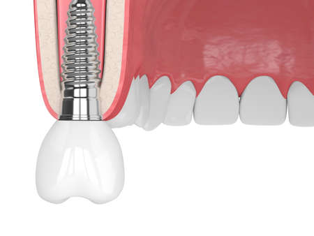 3d render of gum cross-secton with implant placement over white background Zdjęcie Seryjne
