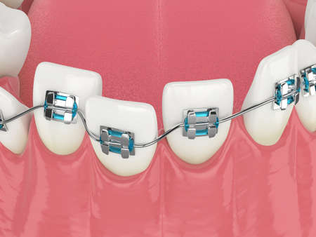 3d render of teeth alignment by orthodontic braces isolated over white background