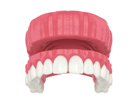 3d render of removable traditional denture installation over white