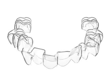 3d render of invisalign removable aligner straightening teeth over white background