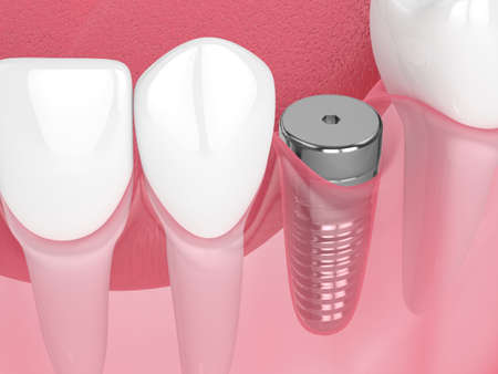 3d render of jaw with implant screw and healing cap. Dental implantation concept