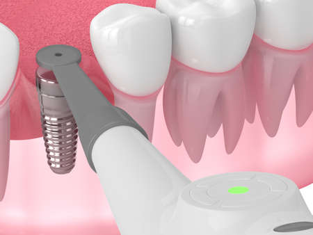 3d render of jaw with buried healing cap and smart implant detector over white background