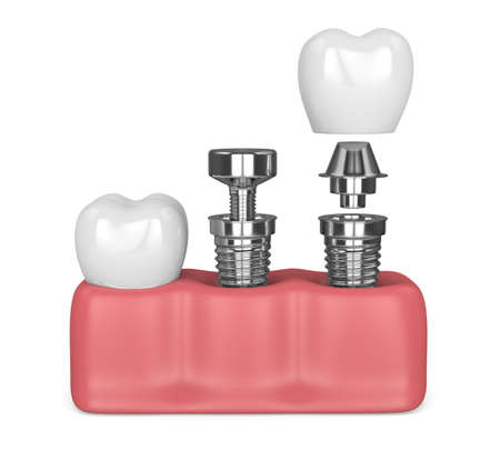 3d render of gums with implanting tooth procedure. Implantation concept