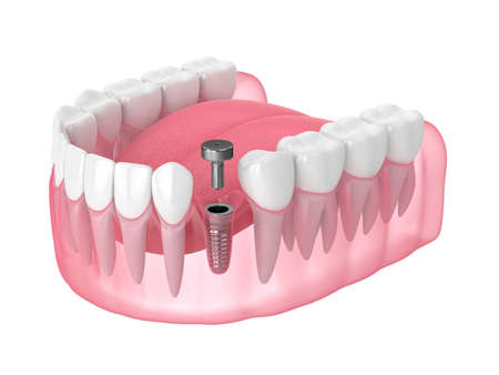 3d render of jaw with implant screw and healing cap over white background. Dental implantation concept