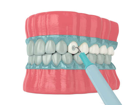 3d render of jaw with applying activating gel for teeth bleaching. Teeth whitening concept.