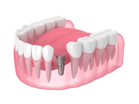 3d render of jaw with implant screw and buried healing cap under gums. Dental implantation concept