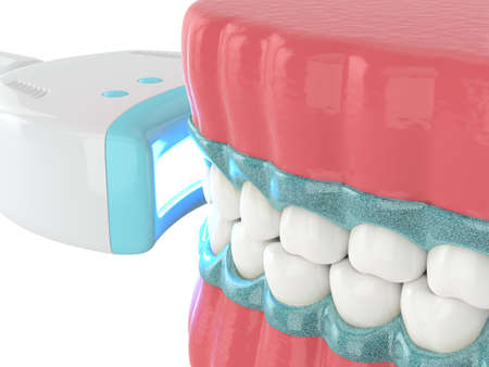3d render of jaw with teeth bleaching by uv lamp. Teeth whitening concept.