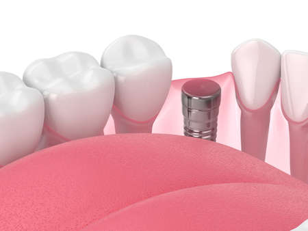 3d render of jaw with implant screw and buried healing cap. Dental implantation concept