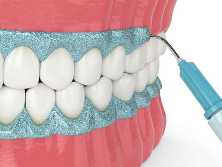3d render of jaw with gingival mask before teeth bleaching. Protecting the gums before teeth whitening concept.