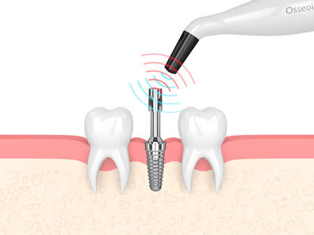 3d render of osseointegration monitoring device checking dental implant stability