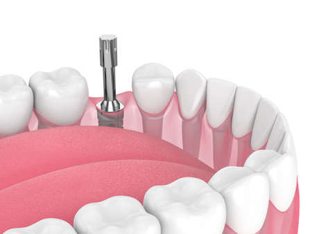 3d render of dental implant with multipeg to check implant stability