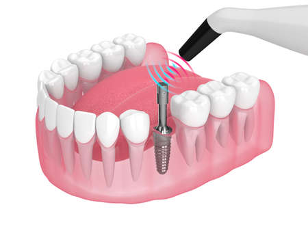 Checking dental implant stability by osseointegration monitoring device Zdjęcie Seryjne