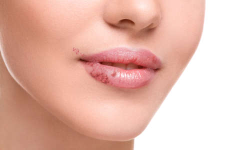 affected: Close up of female lips affected by herpes virus