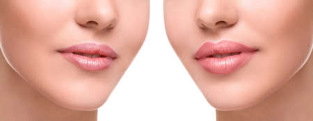 plump: Female lips  before and after augmentation