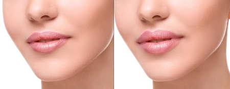 губы: Женские губы до и после увеличения