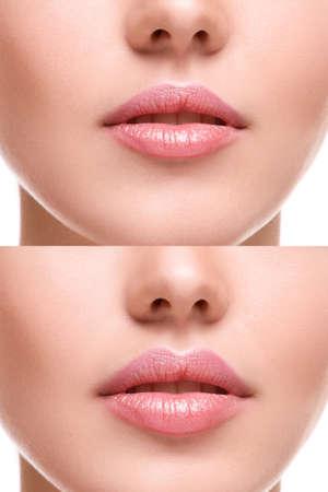inyeccion: Mujeres labios antes y después de aumento Foto de archivo