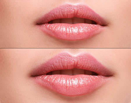 Female lips  before and after augmentation
