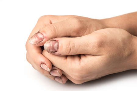 slatternly: Female hands with dirty nails in studio Stock Photo