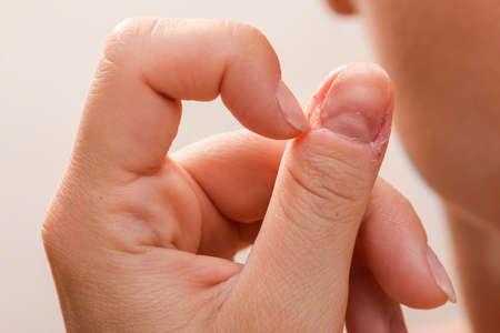 Close up of injured female finger after biting nails Foto de archivo