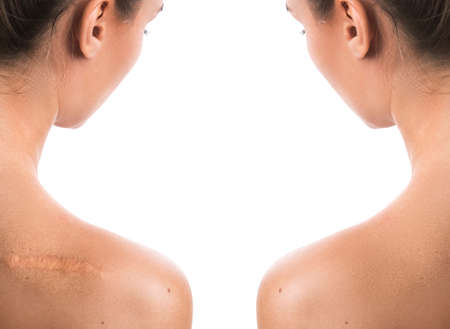 Comparision of female shoulder after scar removing procedure Stock Photo