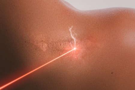 Hombro femenino y rayo láser durante el tratamiento de eliminación de cicatrices