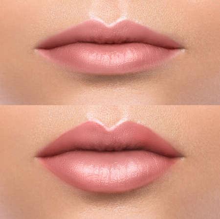 Vergleich der weiblichen Lippen vor und nach der Augmentation