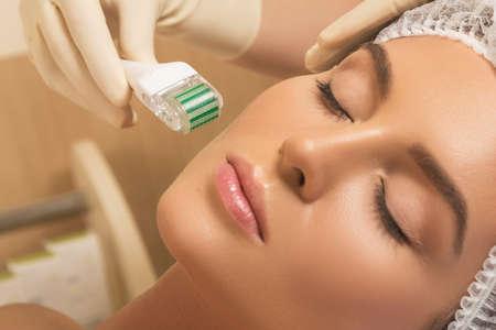 Schöne Frau im Schönheitssalon während der Mesotherapie. Microneedling-Behandlung des Gesichts mit einem Mesoroller. Standard-Bild