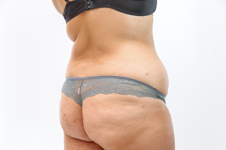 the body of a young woman in lingerie with stretch marks and overweight. on white isolated background