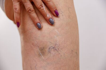 An elderly woman smears a cream or ointment on her leg on a light isolated